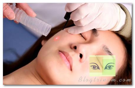 Giới thiệu 3 công nghệ trị nám hiệu quả bằng laser