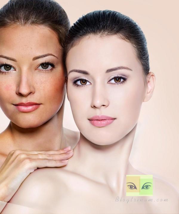 3 Cách trị nám da mặt lâu năm hiệu quả ít người biết