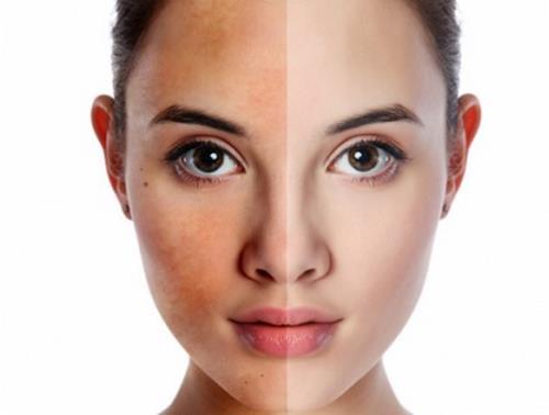 Siêu tiết kiệm với 5 cách trị nám da mặt hiệu quả nhất tại nhà